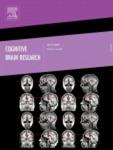 Cognitive Brain Research
